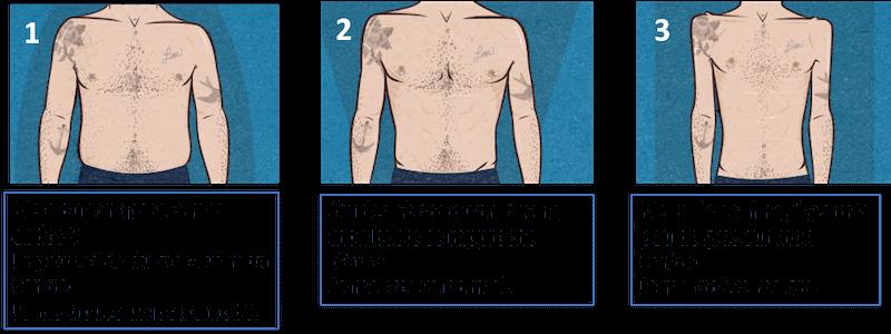 corps 3 morphotypes